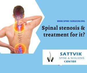 best spine treatment
